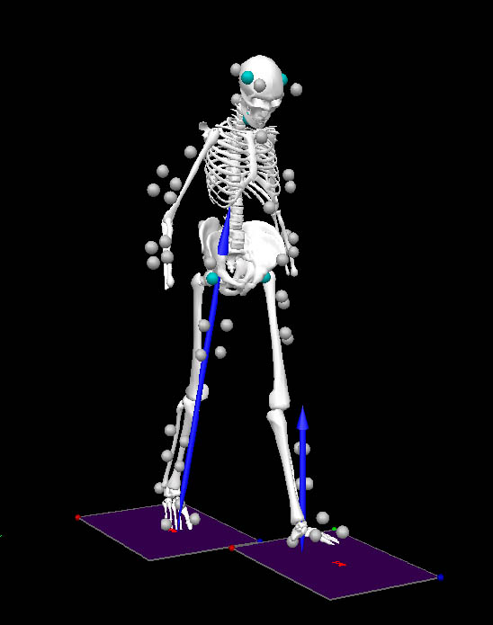 Three-dimensional gait analysis of a lower limb amputee participant before the exercise intervention
